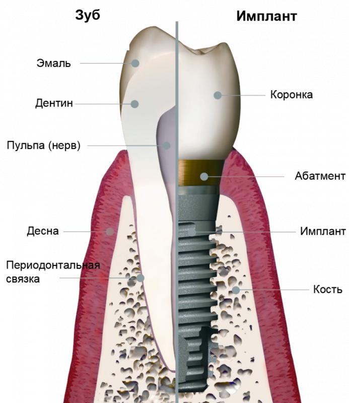 Коронка на имплантат Israel из диоксида циркония