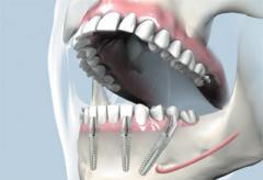Зубные протезы несъемные