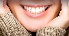 Бриллианты для зубов