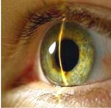 Лечение глаукомы в Кишиневе