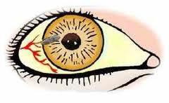 Первичная хирургическая обработка при проникающем ранении глазного яблока с наличием инородного тела в Кишиневе