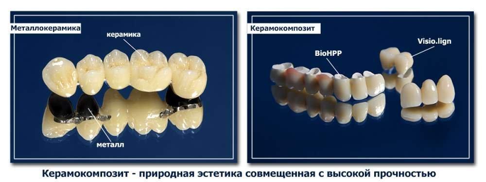 Заказать Инновационная методика протезирования зубов с использованием BioHPP и Visio.lign- Bredent (Germany).