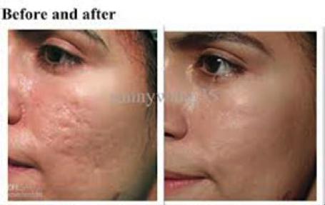 Фракционная мезотерапия кожи лица цена в москве