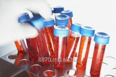 Заказать Анализ Аутоантитела к париетальным клеткам, anti-GPC