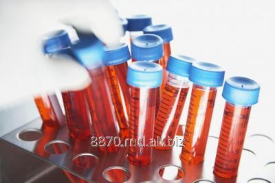 Заказать Анализ Аутоантитела к циклическому цитруллинированному пептиду, ACCP