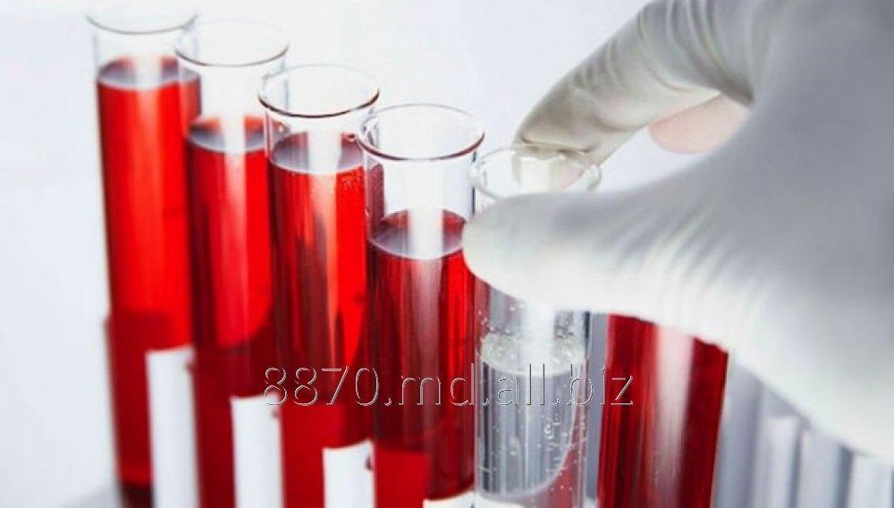 Заказать Анализ Ревматоидный фактор, RF