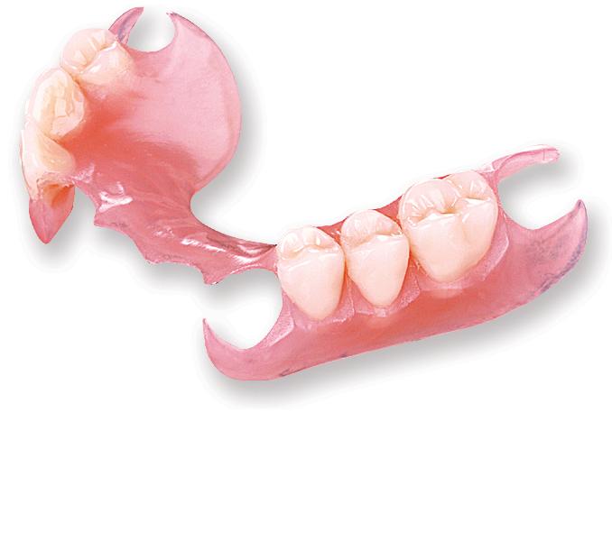 Заказать Бюгельное протезирование зубов