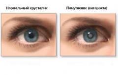 Лечение катаракты в Кишиневе