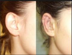 Correction of a shape of ears