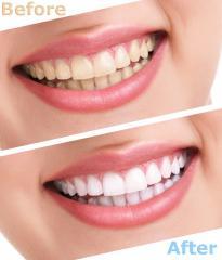 Лечение деструктивных поражений тканей зуба