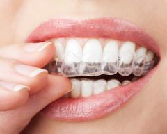 Коррекция формы и положения зубов Кишинев