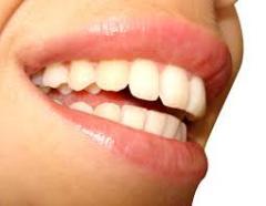 Изменение размеров зубов Кишинев