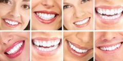 Пломбирование корневых каналов зубов Кишинев