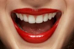 Albirea dintilor in Chisina