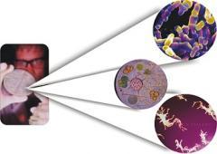Dezinfectare, supraveghere sanitaro-epidemiologica