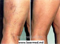 Laser removal of rosacea and spider veins on the