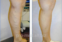 Laser treatment of varicosity