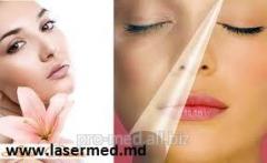 Laser treatment of hyperpigmentation