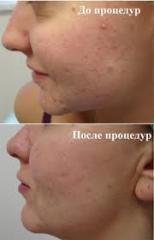 Laser treatment of comedones