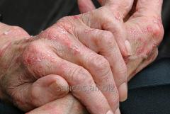 Кожные инфекционные заболевания