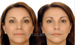 Hypodermic fillers (fillers)