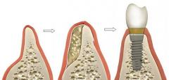 Наращивание кости нижней челюсти