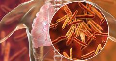 Дезинфекция при туберкулезе/ Dezinfectie tuberculoza