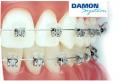 Брекеты Damon System   Выравнивание зубного ряда